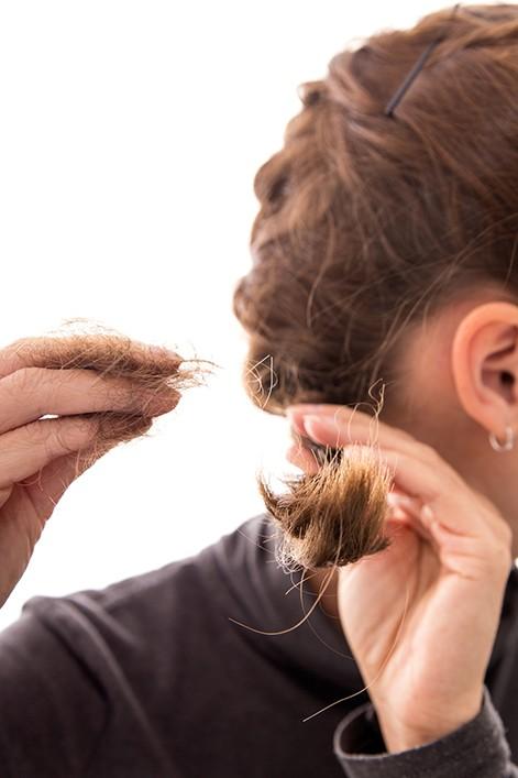 wypadanie włosów nużeniec