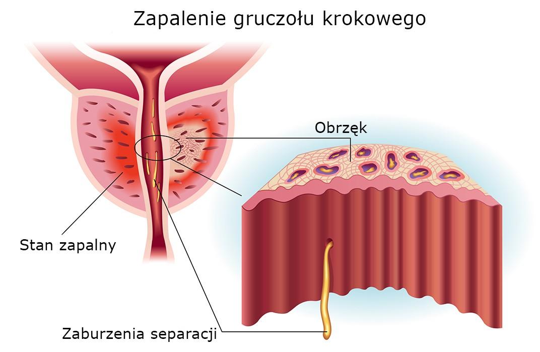 zapalenie prostaty objawy